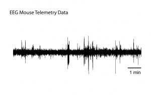 Kaha telemetry EEG data